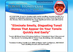 Tonsil Stones Cure