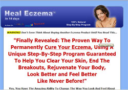 Heal Eczema: The 14 Day Cure Process