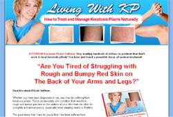 Living With KP: Home Remedy to Treat and Manage Keratosis Pilaris Naturally