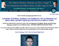 How I Permanently and Safely Removed Moles and Warts For Life!